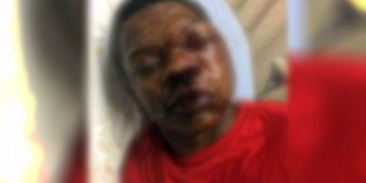 Family of boy at center of Troy police brutality claim hires attorneys