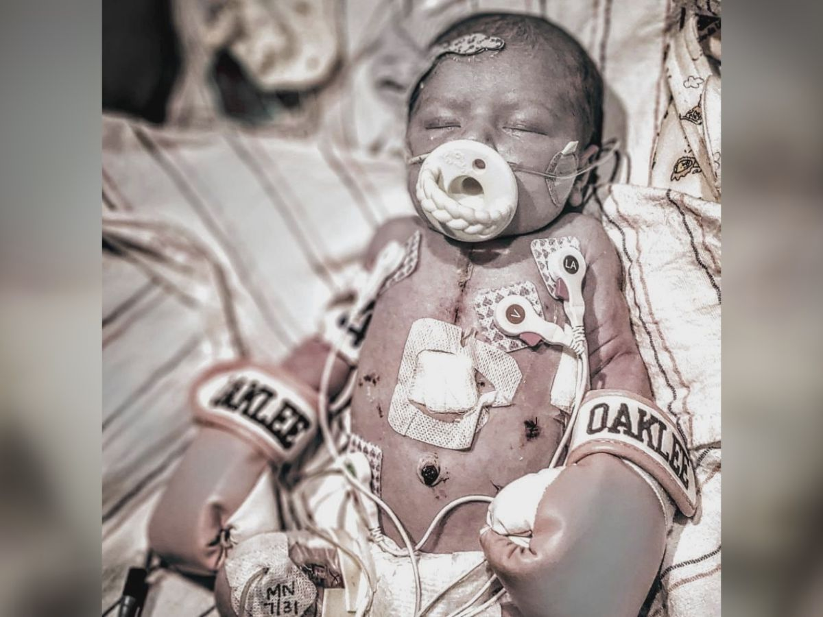 Community members come together to help family and daughter with heart defect