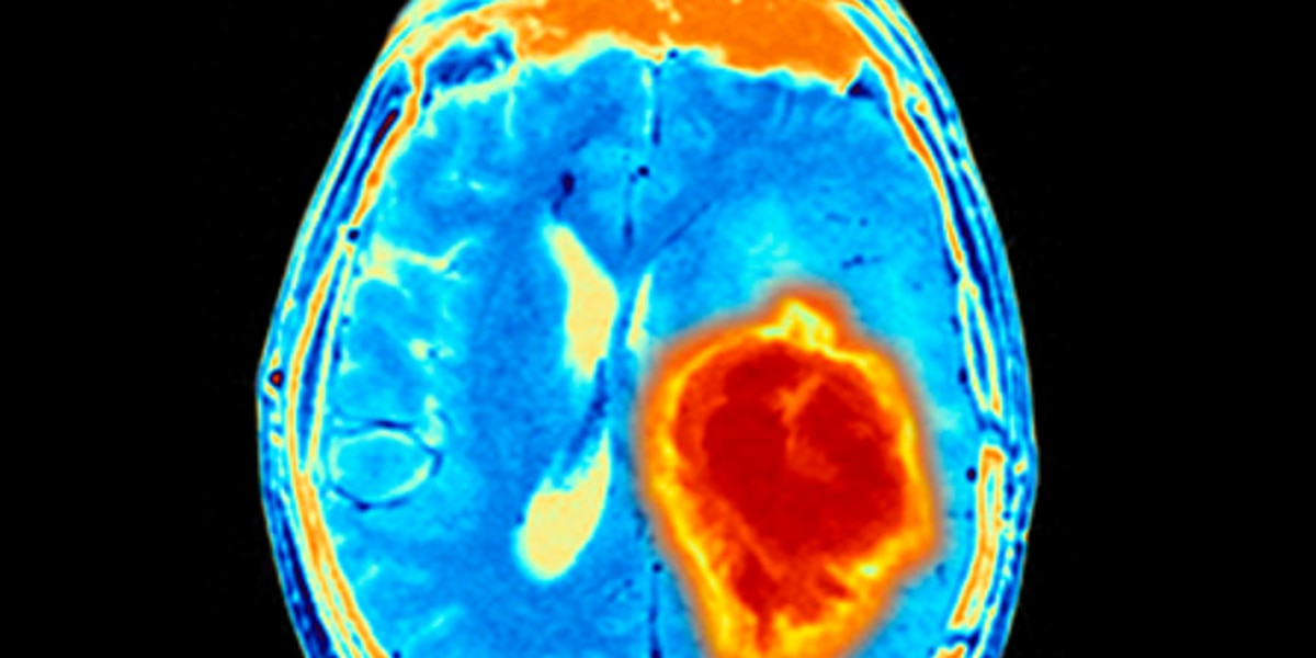 UAB research: Modified herpes virus shows promise in treating pediatric brain tumors