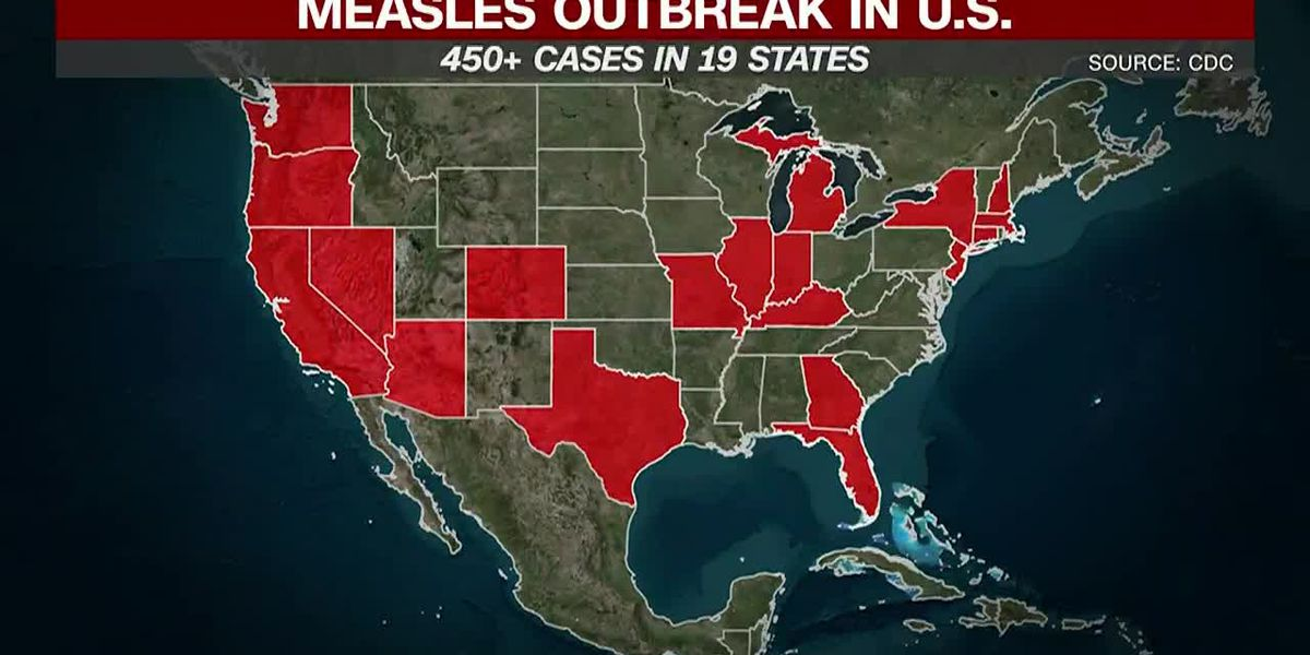 Measles cases on the rise in the United States