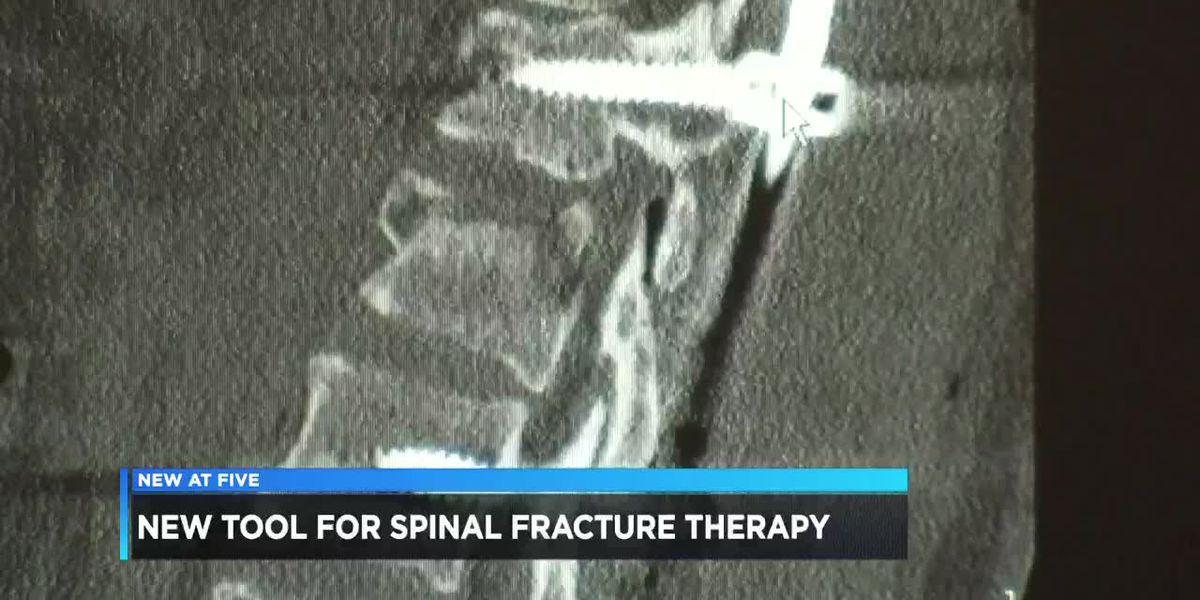 New tool helps in spinal fracture therapy
