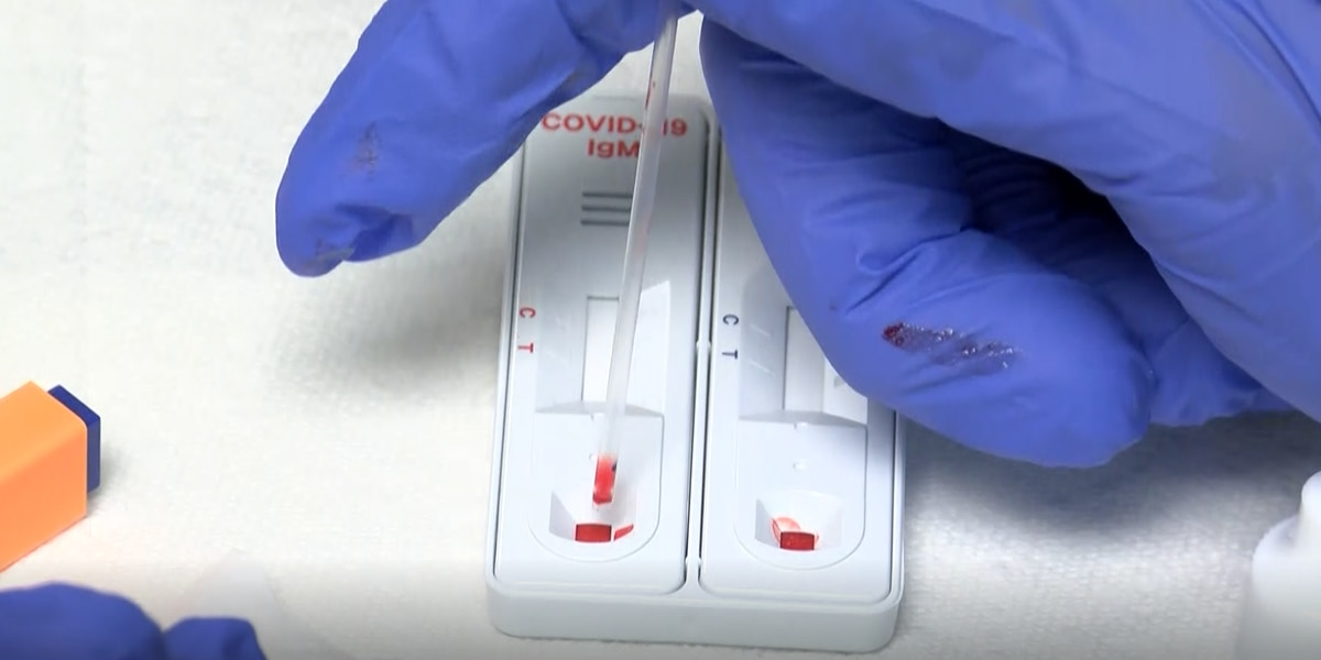 UAB researcher develops at home COVID-19 antibody testing kit