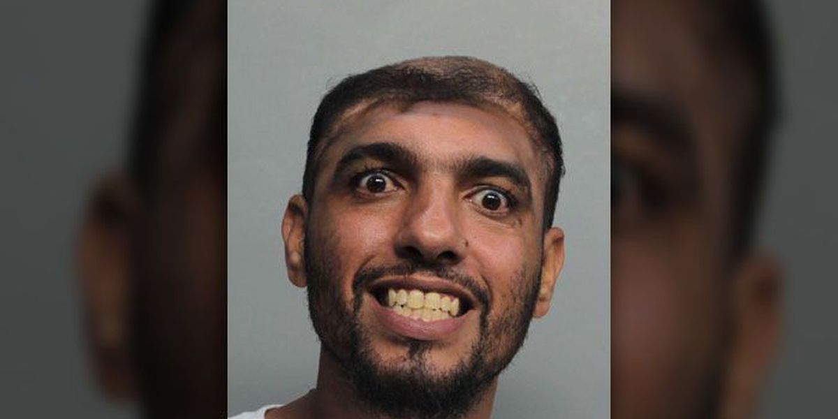Florida man with half a head charged with attempted murder