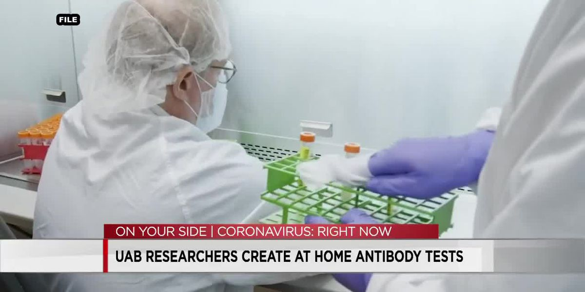 UAB researchers create at home antibody tests