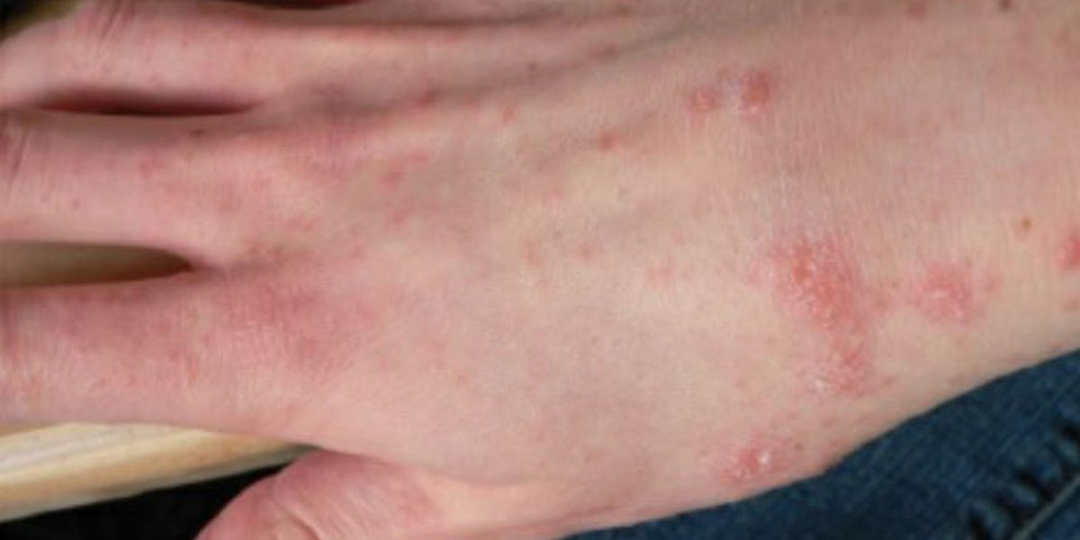 Outbreak of scabies at Alabama's Holman prison